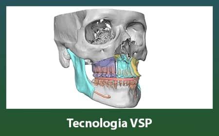 Tecnologia VSP